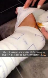star24-agression-jazz-laurent-blessure